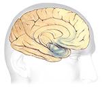 Alz Org Brain Tour Alzheimers